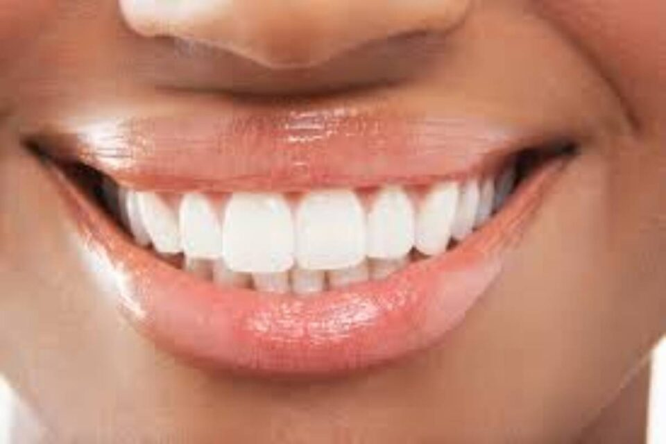 Best Teeth Whitening Products – About, Uses, Tips, and More
