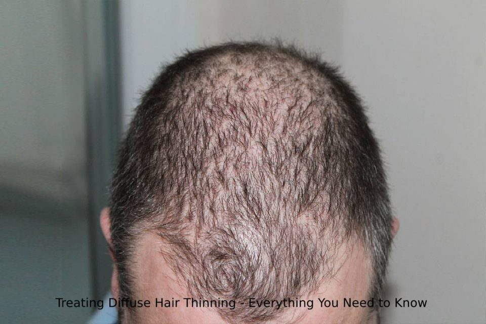 Treating Diffuse Hair Thinning - Everything You Need to Know
